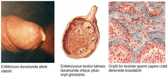 Kadınlarda üreaplasma tanısı ve tedavisi