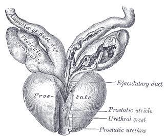 Prostat1