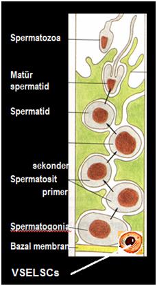 azospermi2