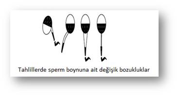 sperm_boynu