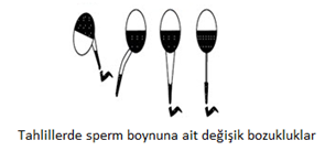 sperm_boyutu_3